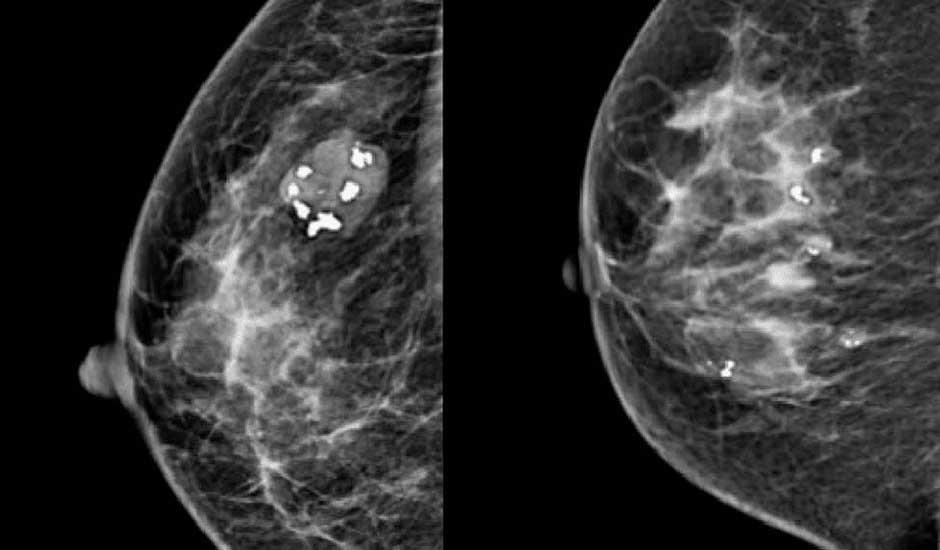 próstata y calcificaciones tumorales