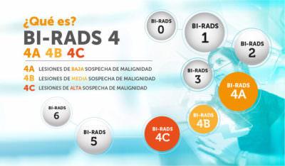 BI RADS 4 mamográfico
