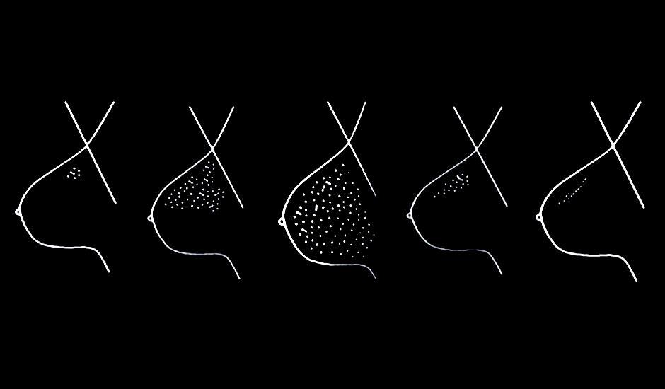 calcificaciones mamarias