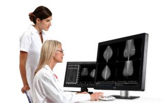 control de resultados tomosíntesis