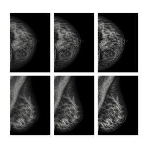lesiones-mamarias
