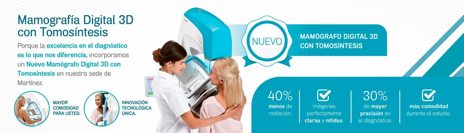 Mamografía Digital 3D con Tomosíntesis